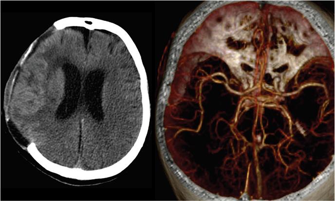 Cranial neurosurgery Sample