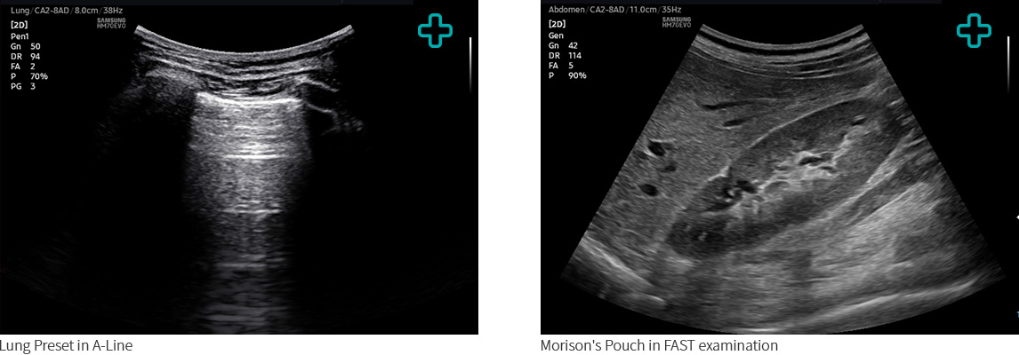Lung Preset in A-Line, Morison's Pouch in FAST examination