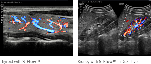 Kidney with S-Flow™ in Dual Live