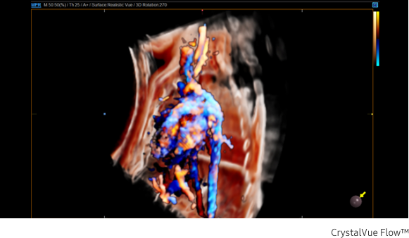 Fetal circulation in Crystal Vue Flow™