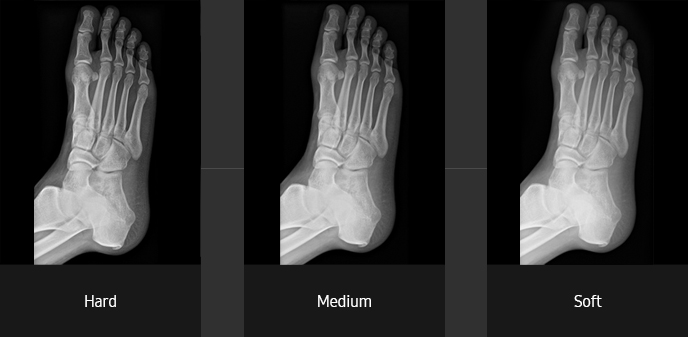 Foot oblique Sample