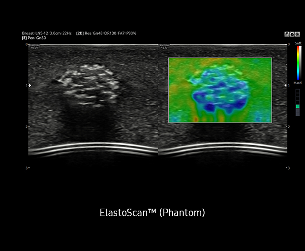 ElastoScan™ Sample