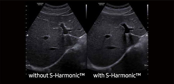 Amostra S-Harmonic ™