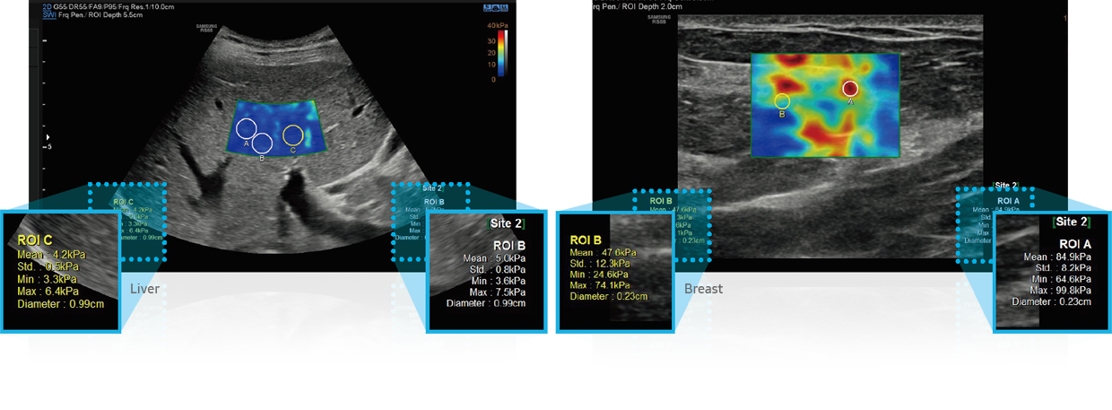 S-Shearwave Imaging ™ _Breast