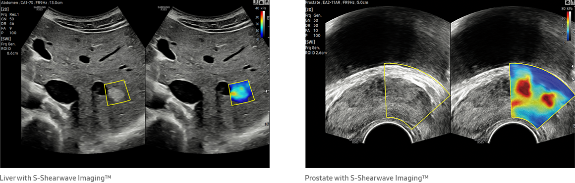 Liver with S-Shearwave Imaging™, Prostate with S-Shearwave Imaging™