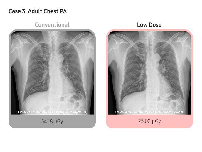 Case 3. Adult Chest PA