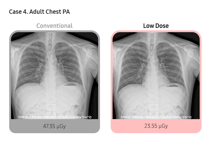 Case 4. Adult Chest PA