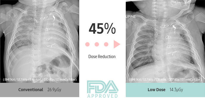 45% Dose Reduction