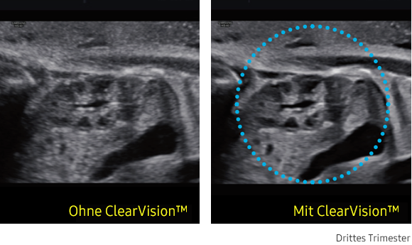Ultraschallbild links ohne ClearVision, rechts mit ClearVision